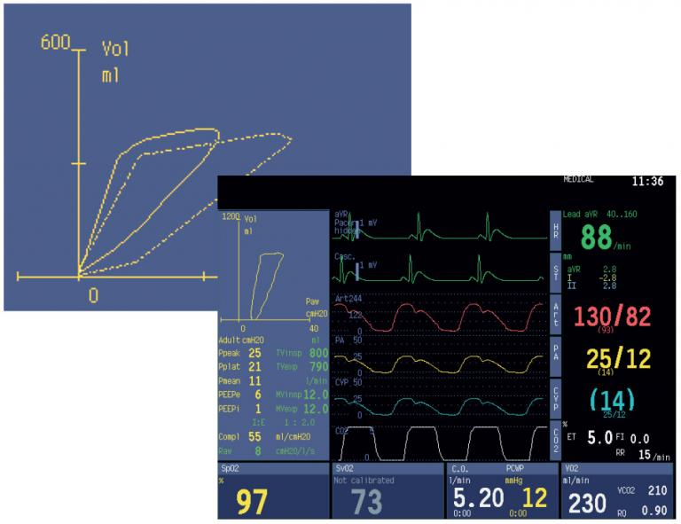 Spirometry split screen enables real-time monitoring of spirometry loops and numerical values.