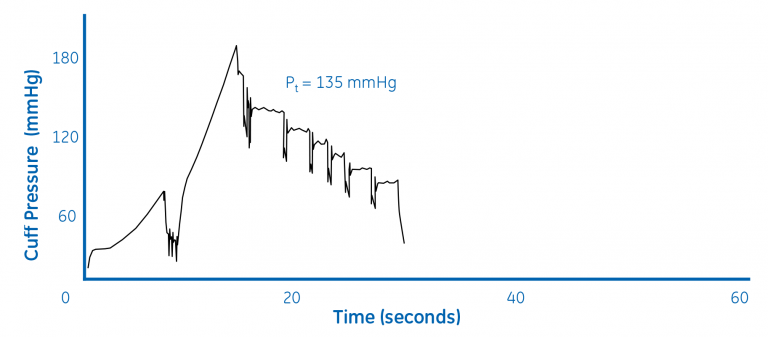 Figure 1b. Extrapolation of systolic pressure (BP = 145/89)