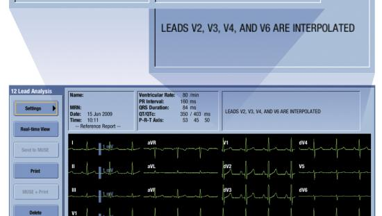 A view of a 12RL report on the monitor screen