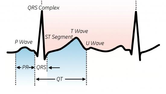 Determination of the QT interval